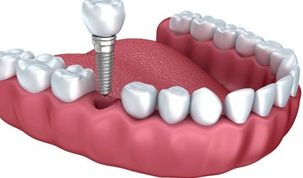 Illustration of dental implant and crown being placed in lower arch