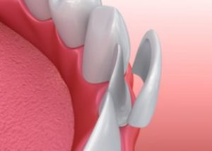3D image of veneer being placed on front tooth