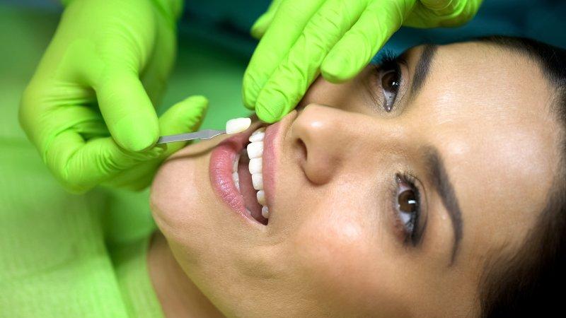 Woman getting dental veneers